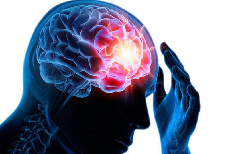 CBD et épilepsie