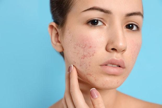 Se débarrasser de l'acné grâce au CBD