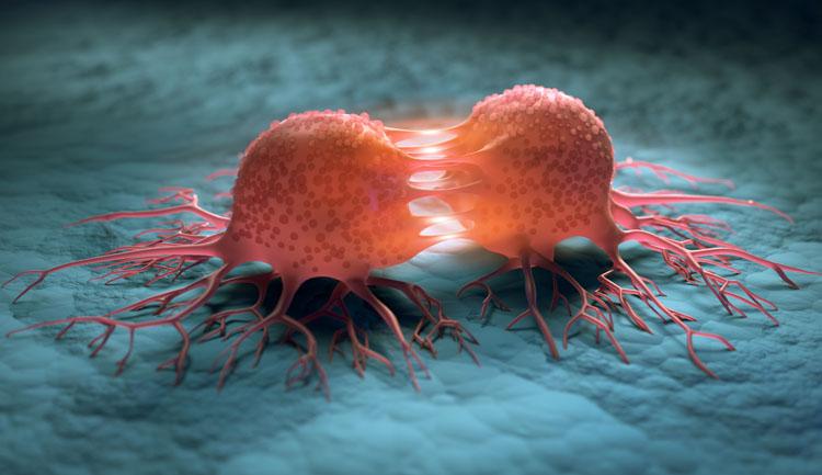 Cellules cancéreuses - tumeur ; les traiter avec le CBD